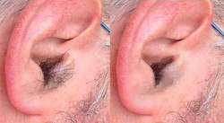 Before-and-after-ear-hair-removal