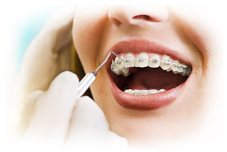 servios-ortodontia.jpg