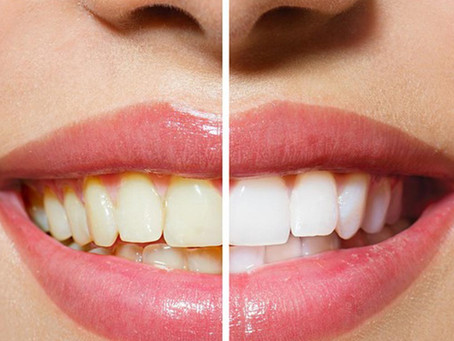 How to get a white smile naturally