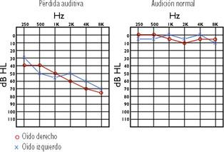 ¿En que consiste el examen de Audiometría?