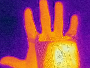 Why is keeping your hands warm important?