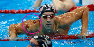 cupping therapy, michael phelps, cupping and the olympics, chinese medicine, acupuncture