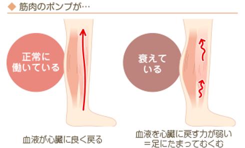 むくみ、冷えと筋肉ポンプ作用