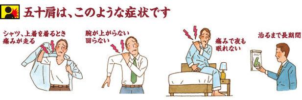 四十肩・五十肩・肩の痛みの症状