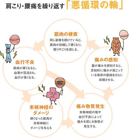 腰痛の慢性化する悪循環