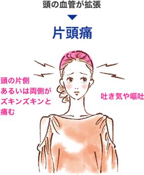 肩こり・首こりが原因の偏頭痛