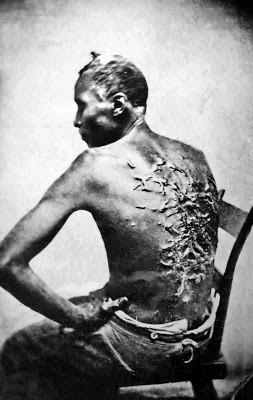 Cicatrizes de açoite
