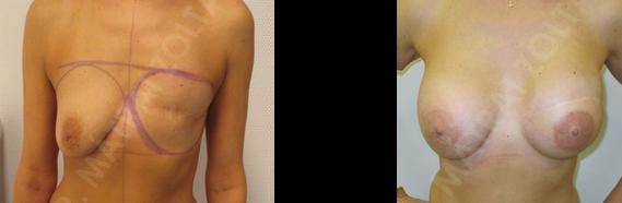 Bal oldali teljes mirigyeltávolítás (masztektómia) utáni állapot.