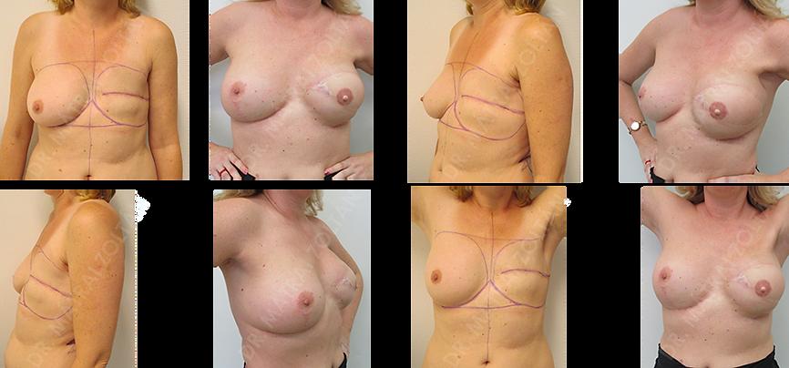 Bal oldali mastectomia és hónalji nyirokcsomó eltávolítás, kemo-radioterápia utáni állapot. Bal oldalon emlőhelyreállítás széles hátizomlebennyel történt lágyrészpótlással és szilkon implantátummal, majd emlőbimbó képzés és bimbó-bimbóudvar tetoválás. Jobb oldali szimmetrizációs célú emlőfelvarrás és szilikon implantátum beültetés.