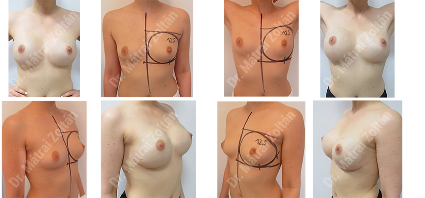 A BRCA pozitiv betegnél kétoldali emlőbimbó megtartó masztektómiára és szilikon implantátum rekonstrukcióra került sor.