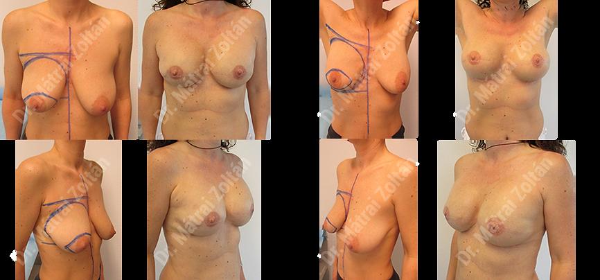 Kétoldali bőrtakarékos mastectomia implantátummal rekonstruálva