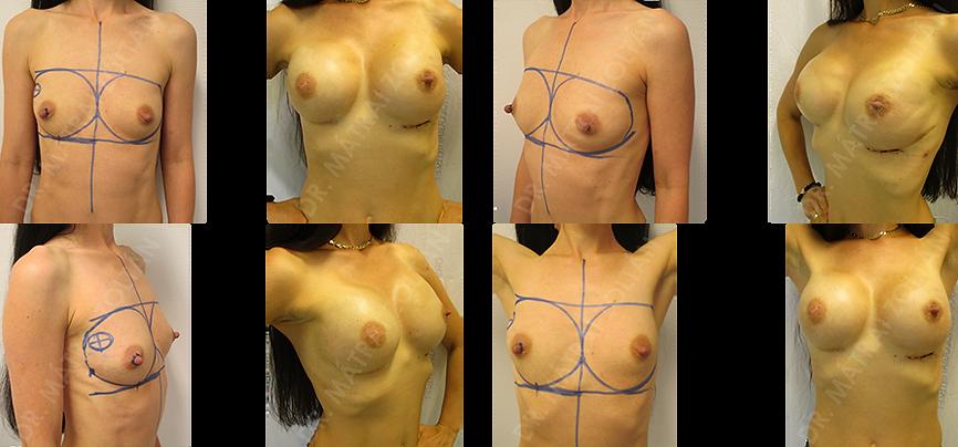 A BRCA pozitív fiatal nőbetegnél a jobb emlő külső-felső negyed tumora miatt végeztünk első lépésben jobb oldali bimbóudvar megtartó teljes mirigyeltávolítást, őrszemnyirokcsomó biopsziával, azonnali-halasztott (expanderrel történő) emlőhelyreállítással. Második ülésben jobb oldali expander-szilikon implantátum csere történt, és a beteg kérésére bal oldali rizikócsökkentő bimbómegtartó teljes mirigyeltávolítás, expanderrel történő helyreállítással, majd expander-szilikon implantátum cserével.