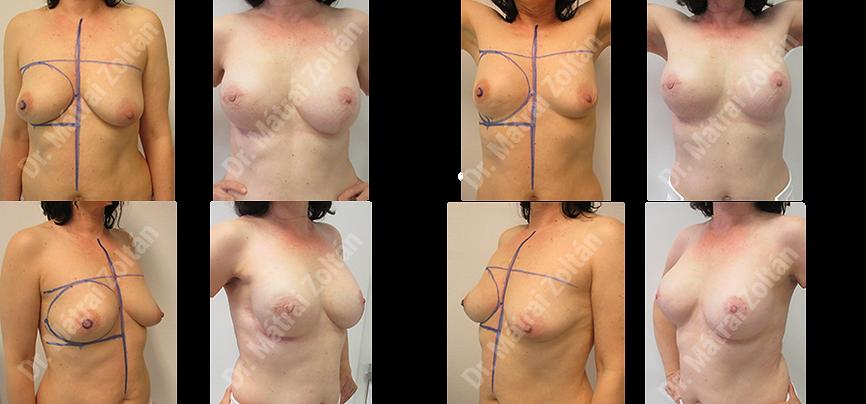 Egyoldali bimbóudvar megtartó masztektómia implantátum rekonstrukció és szimmetrizáció