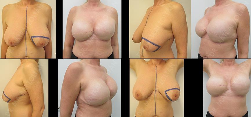 Az 51 éves nőbetegnél mindkét oldali emlőrák miatt végeztünk bőrtakarékos masztektómiát és expanderrel történő emlőhelyreállítást, majd mindkét oldali expander-szilikon implantátum cserét, egyedi gyártású 1000 cm3 feletti implantátumokkal. Szükséges még kétoldali emlőbimbó képzés és tetoválás.