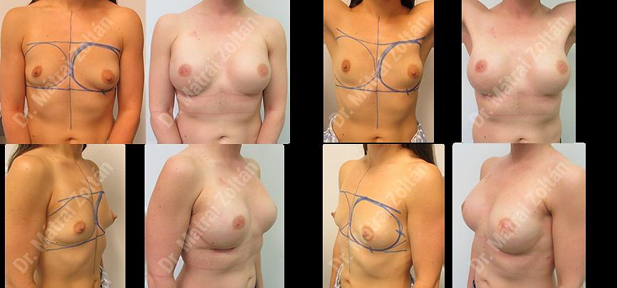 Kétoldali bimbóudvar megtartó masztektómia, BRCA pozitivitás