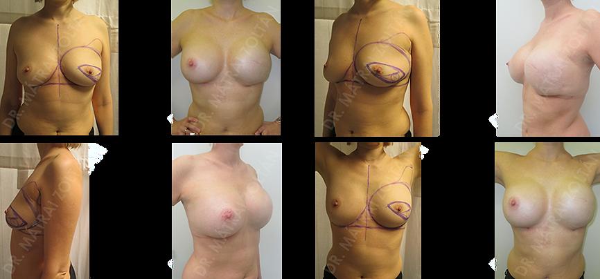 Bal oldali bőrtakarékos teljes mirigyeltávolítás és azonnali szövettágító ballonnal történő emlőhelyreállítás, majd mindkét oldali szilikon implantátummal történő szimmetrizáció.