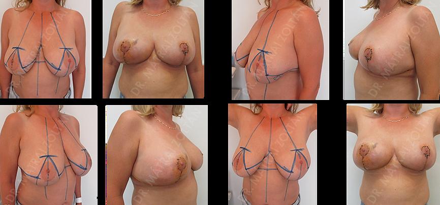 A 39 éves terhelt anamnézisű nőbetegnél a bal oldali emlőben kiterjedt rosszindulatú daganat miatt végeztünk módosított Wise-szerinti onkoplasztikus emlőmegtartó műtétet azonnali ellenoldali szimmetrizációval.