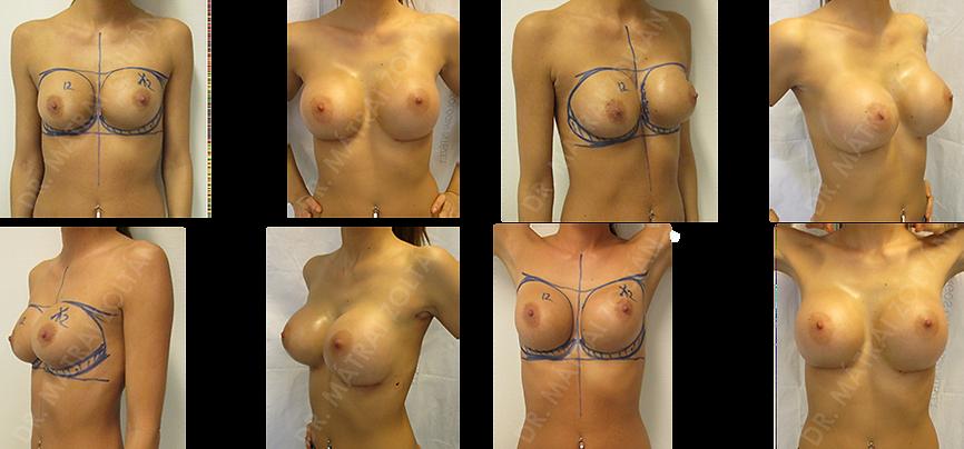 Korábbi kétoldali szilikon implantátummal történt emlőnagyobbítás. Mindkét oldalon kapszuláris kontraktúra az implantátumok körül, ami bal oldalon az emlőt deformálja. A bal emlőben a felső negyedhatáron bizonytalan, tumor gyanús elváltozás. A bal emlőből a bizonytalan képlet kimetszése, bal oldalon a kapszula eltávolítása jobb oldalon kapszuloplasztika és mindkét oldalra szilikon implantátum beültetés.
