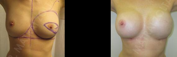 Bal oldali bőrtakarékos teljes mirigyeltávolítás és azonnali szövettágító ballonnal történő emlőhelyreállítás, majd mindkét oldalli szilikon implantátummal történő szimmetrizáció.