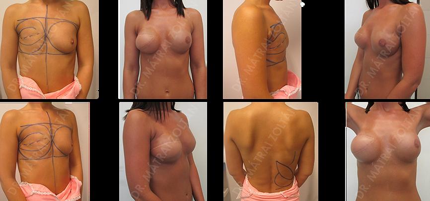 Mellrák műtét előtt és után
