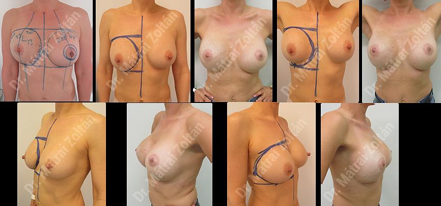 Egyoldali emlőbimbó megtartó masztektómia és szilikon implantátummal történő rekonstrukció, valamint szimmetrizáció.