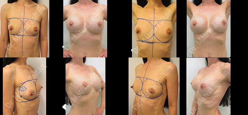 Az egyik oldalon bimbóudvar megtartó masztektómia, majd szilikon implantátum rekonstrukció és emlőbimbó képzés, a másik oldalon bimbómegtartó masztektómia és implantátum rekonstrukció. - 005 ASM NSM.png