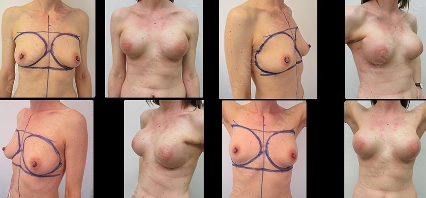 BRCA pozitív fiatal nőbeteg, kétoldali bimbóudvar takarékos mastectomia, és azonnali szilikon implantátummal és Ultrapro hálóval történő emlőhelyreállítás utáni állapot.
