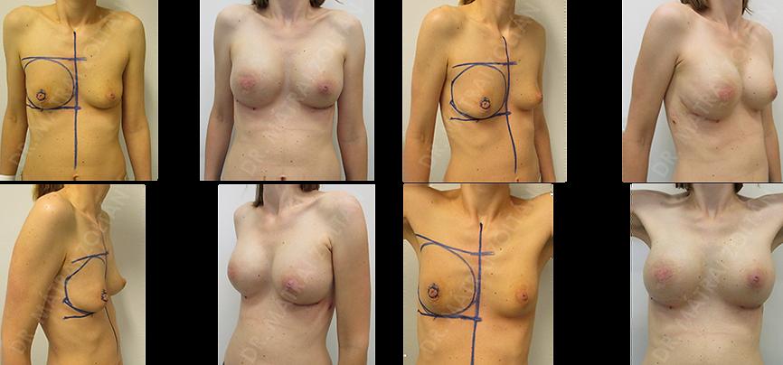 A 39 éves nőbetegnél a jobb oldali emlő rosszindulatú daganata miatt történt bimbóudvar takarékos masztektómia és expander beültetéssel történő azonnal megkezdett emlőhelyreállítás. A jobb oldali expandert szilikon implantátumra cseréltük, bal oldalon szimmetrizációs (szilikon implantátummal történő) térfogatnövelést végeztünk. Szükséges még jobb oldali bimbóképzés.