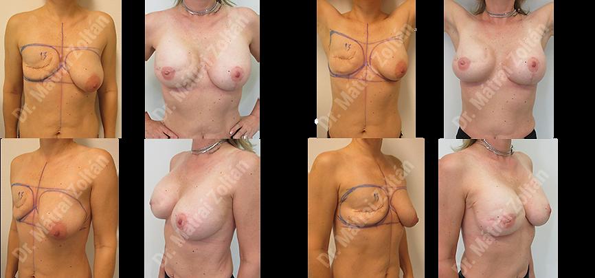Egyoldali masztektómia rekonstrukció lassú bőrtágítással és ellenoldali szimmetrizáció
