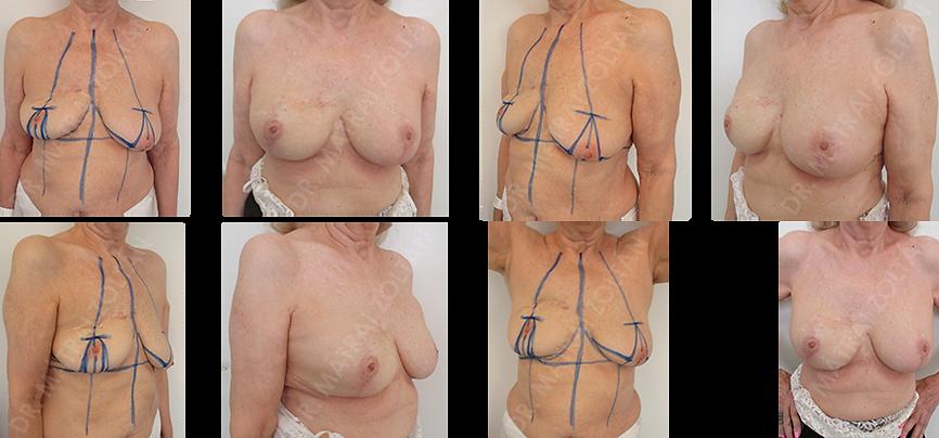 A 74 éves nőbetegnél korábban a jobb emlő belső felső negyedének rosszindulatú daganata miatti sebészi eltávolítása és sugárterápia szerepel. A páciens biológiai életkora, dinamikus életvitele természetesen lehetővé tette, hogy az önképét zavaró, lelkileg a daganatos betegségre emlékeztető kialakult emlődeformitását mindkét oldali emlőfelvarrással és jobb oldali szilikon implantátum beültetéssel történő térfogatpótlást végeztünk. Az eset jól példázza, hogy a kronológiai életkor NEM kontraindikációja az emlők rekonstrukciójának.