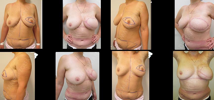 A bal oldali emlő bőrtakarékos teljes mirigyeltávolítása (bőrtakarékos mastectomia) és helyreállítása alhasi bőr-zsírlebennyel (TRAM).