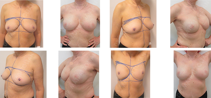 BRCA pozitív esetben mindkét oldali bimbóudvar megtartó masztektómia és azonnali szilikon implantátummal és Ultrapro hálóval történő emlőhelyreállítás.