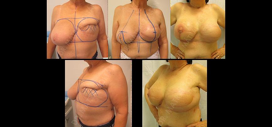 Bal oldali emlő masztektómia utáni állapota, majd széles hátizomlebeny transzpozíció, majd bal oldalra szilikon implantátum beültetés és jobb oldali szimmetrizációs célú emlőfelvarrás, és a felső pólus kis térfogató szilikon implantátummal való kitöltése. A bal oldalra emlőbimbó képzés és tetoválás szükséges.