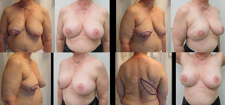 A jobb emlő rosszindulatú daganata miatti bőrtakarékos masztektómia és azonnali kiterjesztett széles hátizomlebennyel való emlőhelyreállítás, majd szimmetrizációs célú emlőfelvarrás a bal oldalon. Jobb oldalon emlőbimbó képzés és tetoválás.