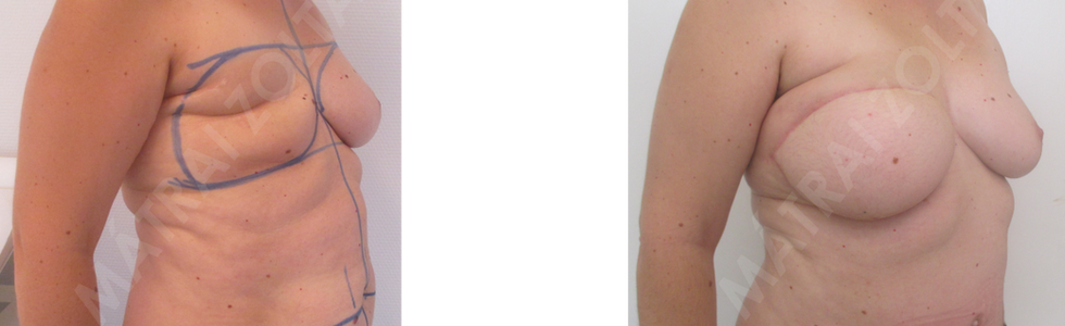 A jobb oldali emlő teljes eltávolítása utáni állapot. Alhasi bőr-zsírlebennyel történt saját szövetes emlőhelyreállítás. Emlőbimbó képzés és bimbóudvar tetoválás előtti állapot.