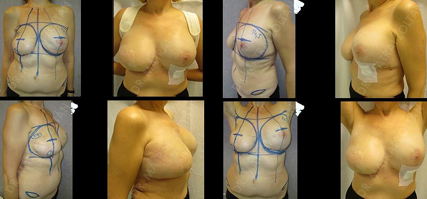 """Az 57 éves nőbetegnél más intézetben a jobb emlő rosszindulatú daganata miatt jobb oldali masztektómia, majd alhasi érnyeles bőr-zsírlebennyel (TRAM) történő emlőhelyreállítás történt, részleges zsírelhalással és heges átalakulással a külső felső és alsó negyedekben, fájdalmas tapintattal. A bal oldali emlőn """"profilaktikus"""" célzattal ún. subcutan mastectomia, azaz bőr alatti masztektómia történt, az emlő mirigyállomány kb 80-90%-nak eltávolításával és szilikon implantátum beültetéssel. (Megjegyzés: Amennyiben az egyik emlő saját szövettel a másik implantátummal helyreállított az elérhető szimmetria általában korlátozott.) A páciensnél jobb oldalon a heges területek kimetszését végeztük, majd anatómiai szilikon implantátumot ültettünk be fejjel lefelé, és autológ zsírtöltést végeztünk. A bal oldalon szilikon implantátum cserét, kapszuloplasztikát és autológ zsírtöltést végeztünk. (Közvetlen varratszedés utáni felvételek.)"""