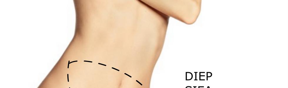 A harántirányú hosszanti hasizom (musculus rectus abdominis) izombőrlebennyel (TRAM) történő helyreállítás