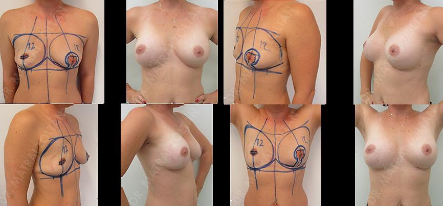 A 39 éves nőbeteg előzményében jobb oldali emlőmegtartó műtét és sugárterápia, majd komplettáló bimbódvar takarékos masztektómia és expanderrel történő emlőhelyreállítás szerepel. A jobb oldali expander spontán leeresztett. Jobb oldali expander-szilikon implantátum cserét és emlőbimbó képzést valamint ellenoldali szilikon implantátummal történő szimmetrizációt végeztünk.