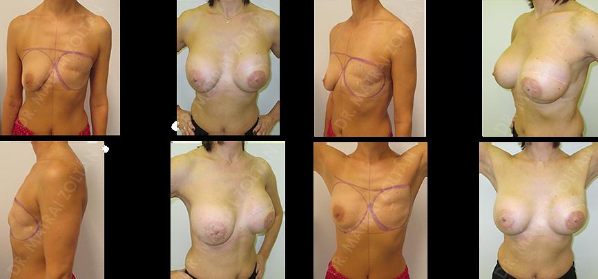 Bal oldali teljes mirigyeltávolítás (masztektómia) utáni állapot. Halasztott rekonstrukció széles hátizomlebeny áthelyezéssel és mindkét oldali szilikon implantátum beültetéssel. Bal oldali emlőbimbó képzés és tetoválás.