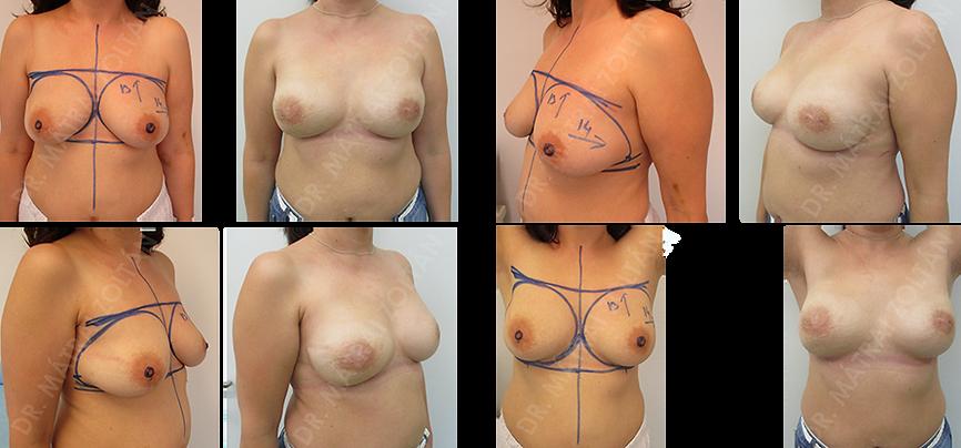 A 46 éves nőbeteg előzményében jobb oldali emlőrák miatt végzett emlőmegtartó műtét és sugárterápia szerepel. A betegnél BRCA gén mutációja igazolódott. A páciens kérésére mindkét oldali bimbóudvar megtartó mastectomiát és azonnali szilikon implantátummal és Ultrapro hálóval történő emlőhelyreállítást végeztünk. A rekonstrukciót követő 1 éves kontroll állapot. Mindkét oldali emlőbimbó képzés szükséges.