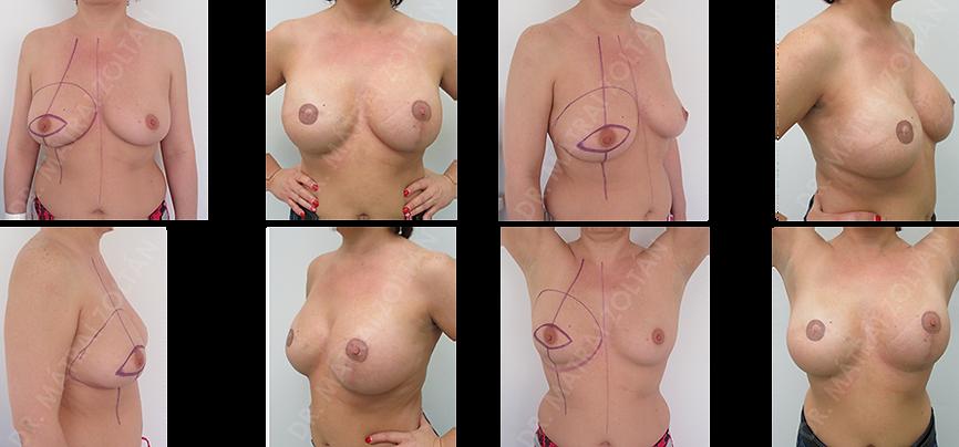 Jobb oldali bőrtakarékos masztektómia (teljes mirigyeltávolítás) az emlőbimbóval együtt, azonnali szöveti expander ballonnal történő emlőhelyreállítás, majd expander ballon-szilikon implantátum csere és emlőbimbó rekosntrukció, bimbó bimbóudvar tetoválással. A bal ldalon szimmetrizációs emlőfelvarrás és implantátummal történő térfogatnövelés.