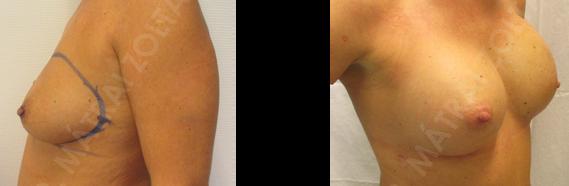 A bal oldali emlő bimbóudvar takarékos teljes mirigyeltávolítása (masztektómia) és azonnali expanderrel történő emlőhelyreállítás, majd bal oldali expander-szilikon implantátum csere a bal oldalon emlőbimbó képzéssel és jobb oldali szilikon implantátum beültetéssel történő szimmetrizáció.