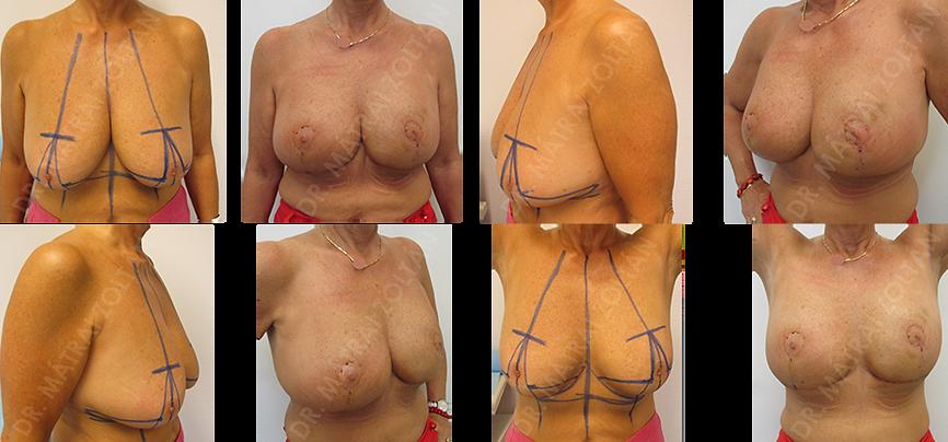 A bal emlő kiterjedt rosszindulatú daganata miatt módosított Wise-szerinti onkoplasztikus emlőmegtartó műtét és azonnali ellenoldali szimmetrizáció történt.