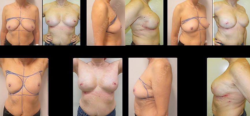 BRCA pozitív páciens. Mindkét oldali bimbóudvar takarékos teljes mirigyeltávolítás és azonnali szilikon implantátummal és Ultrapro hálóval történő emlőhelyreállítás