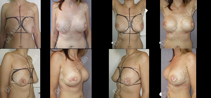 BRCA miatti kétoldali profilktikus masztektómia és szilikon implantátummal történő rekonstrukció, valamint kétoldali emlőbimbó megtartó teljes mirigyeltávolítás és rekonstrukció.
