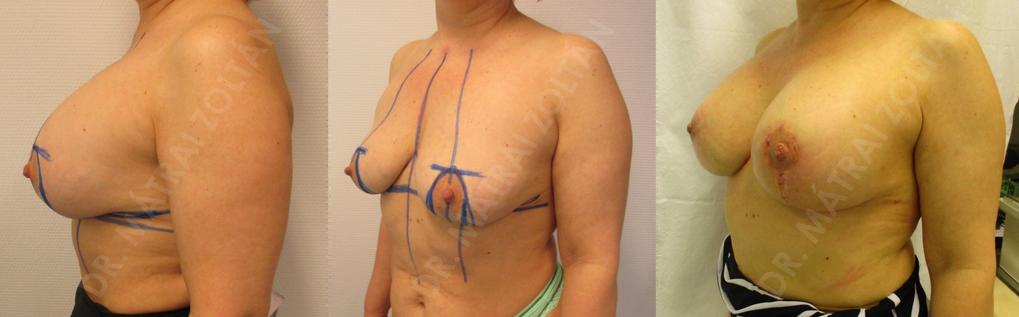 """Mindkét oldali emlők szilikon implantátummal történt térfogatnövelése, """"PIP"""" implantátumok kétoldali intrakapszuláris rupturája, az implantátumok eltávolítása, majd a szövetek pihentetését követően mindkét oldali emlőfelvarrás és szilikon implantátum beültetés utáni állapot."""