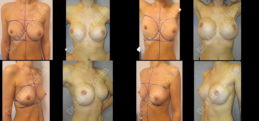 A BRCA pozitiv betegnél kétoldali emlőbimbó megtartó masztektómiára és szilikon implantátum rekonstrukcióra került sor