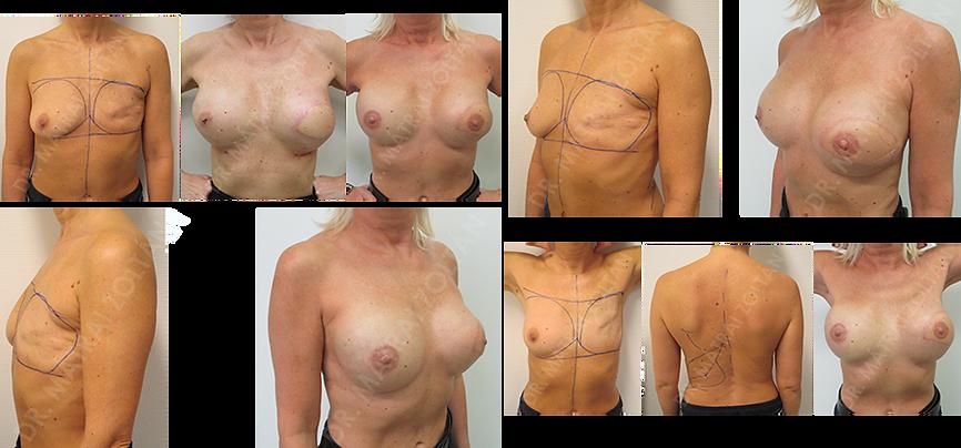 Bal oldali rosszindulatú daganat miatti teljes emlőeltávolítás utáni állapot. BRCA pozitivitás. Bal oldali széles hátizomlebeny átforgatás és szilikon implantátummal történő emlőhelyreállíás, illetve rizikócsökkentő jobb oldali emlőbimbó udvar megtartó teljes mirigyeltávolítás és azonnali szilikon implantátummal és Ultrapro hálóval történő emlőhelyreállítás. Mindkét oldalon emlőbimbó képzés, a bal oldalon bimbóudvar tetoválás szükséges. A rekonstrukció utolsó lépéseként mindkét oldali emlőbimbó képzés és bal oldali bimbóudvar tetoválás történt.