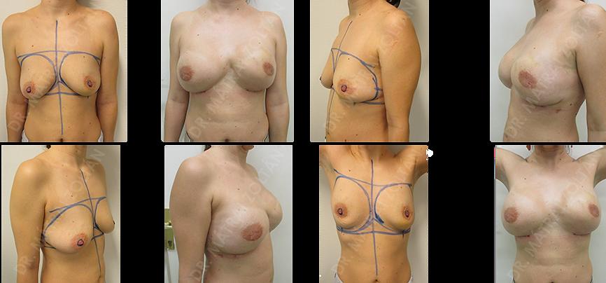 A 38 éves nőbetegnél a BRCA gén mutációja mellett a bal emlő rosszindulatú daganata volt ismert. Mindkét oldali bimbóudvar takarékos mastectomiát végeztünk szövettágító ballon beültetésével, majd mindkét oldali expander-szilikon implantátum cserével. Mindkét oldali emlőbimbó képzés, tetoválás és a bal emlő sajátzsír töltése szükséges a középvonalban észlelhető heges behúzódásból eredő kontúrdeformitás korrekciója céljából.
