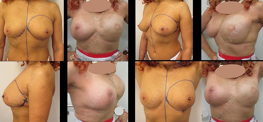 Az 50 éves nőbetegnél a bal oldali emlő rosszindulatú daganata miatt történt bimbódvar megtartó mastectomia halasztott-azonnali emlőhelyreállítással, expander-szilikon implantátum cserével sugárterápiát követően, illetve jobb oldali szimmetrizációs célú emlőfelvarrás és szilikon implantátummal történő térfogatnövelés. A páciens bal oldali emlőbimbó képzés előtt áll.